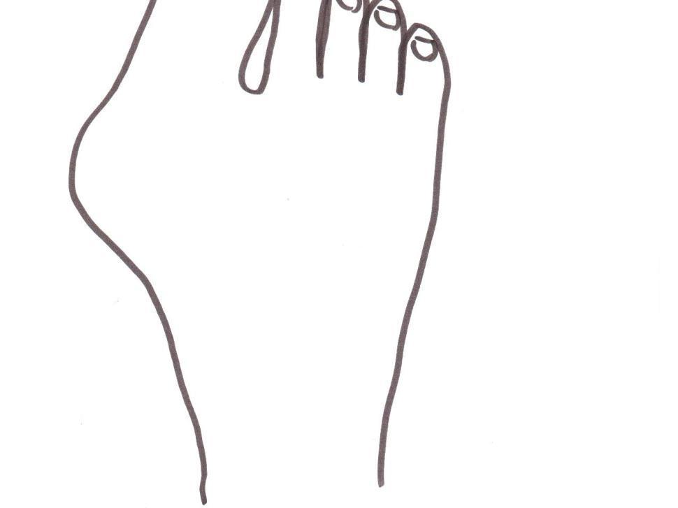 srovnavač vbočeného palce mechanismus